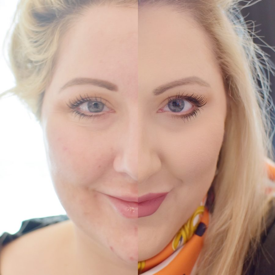 Olay microdermabrasion before and after